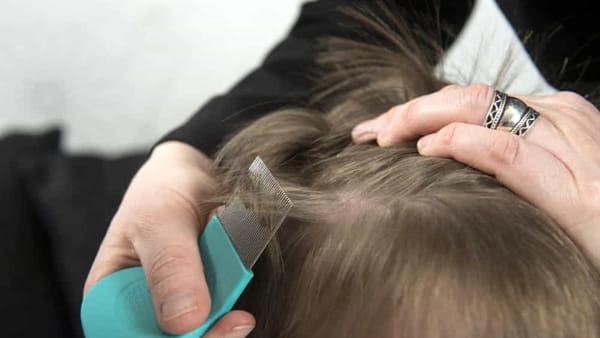 la perdita di capelli a basso ferritina ricrescerà